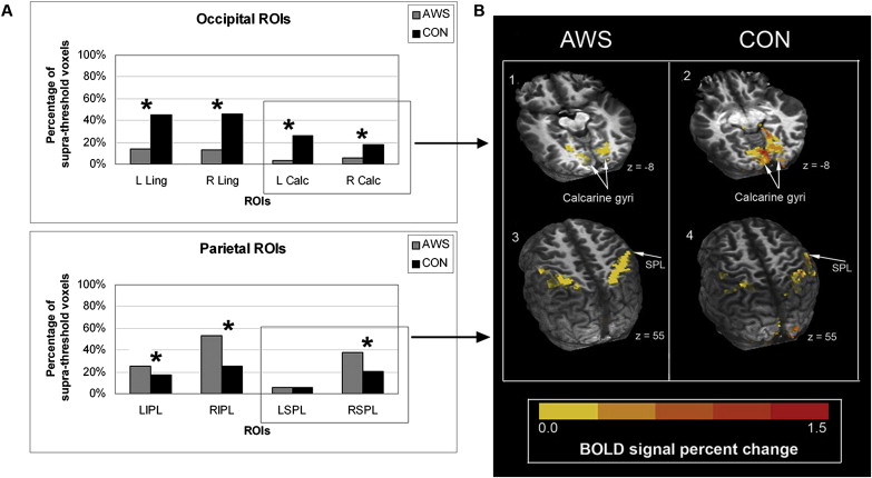Functional Magnetic Resonance Imaging Of A Child With
