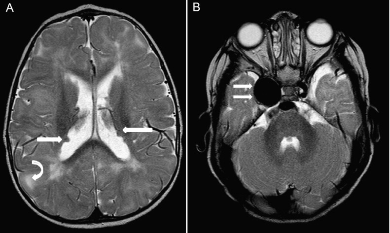 cavernous sinus syndrome from an internal carotid artery